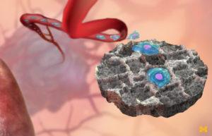 Ilustración del señuelo implantable que atrae células cancerosas de la sangre.