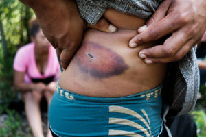 La violencia es común en la ruta migrante. Aquí, un hombre muestra una herida que sufrió en el tren. Crédito de la imagen: Jason De León.