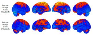 La fila superior muestra cambios cerebrales con reposo de larga duración en cama ; La fila inferior muestra los cambios cerebrales con el vuelo espacial. El naranjo muestra regiones de aumento y azul de disminución de materia gris. Hay una cierta superposición pero también hay diferencias notables con el vuelo espacial que muestra más cambios en el cerebelo, una estructura que está implicada en el aprendizaje del motor.