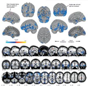 """El azul muestra áreas de disminución del volumen de materia gris, probablemente reflejando el desplazamiento del líquido cefalorraquídeo. El naranjo muestra regiones de aumento de volumen de materia gris, en las regiones que controlan el movimiento de las piernas. Esto probablemente refleja la plasticidad cerebral asociada con """"aprender a moverse en microgravedad"""". ¡Ésta es la primera imagen de cómo el vuelo espacial cambia la estructura del cerebro en los seres humanos!"""