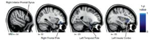 Esta figura muestra los efectos de dosis en la respuesta -las zonas azules muestran una mayor disminución de materia gris entre astronautas de la Estación Espacial Internacional que entre aquellos que pasan unas semanas en el transbordador espacial.
